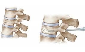 تحلیل و بررسی سیمان استخوان