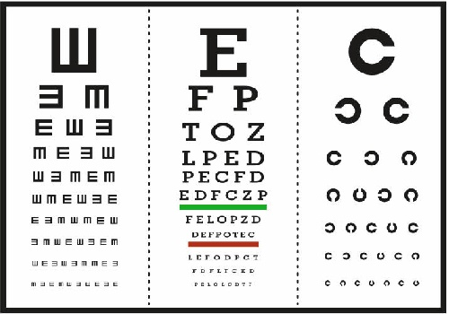 تحلیل و بررسی مقایسه حساسیت کنتراست عینک و لنز تماسی نرم