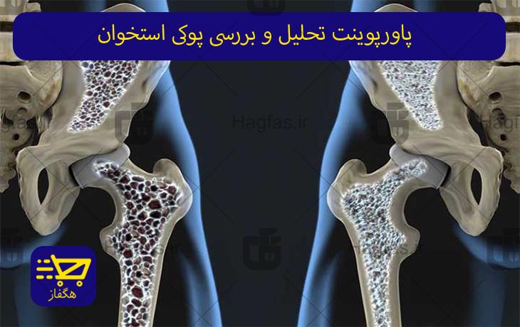 پاورپوینت تحلیل و بررسی پوکی استخوان