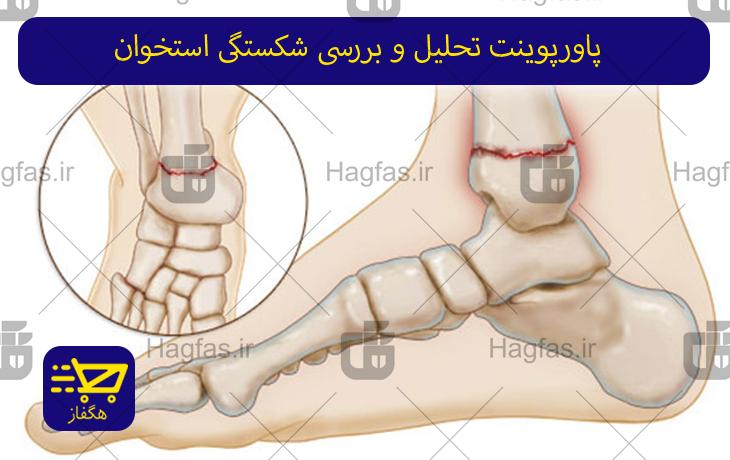 پاورپوینت تحلیل و بررسی شکستگی استخوان