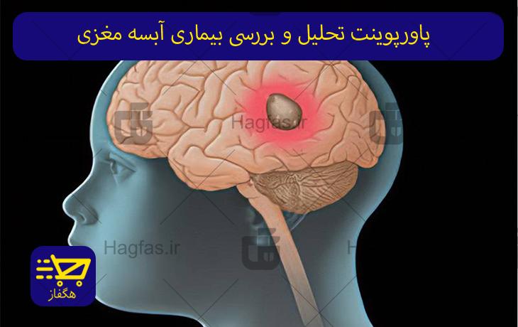 پاورپوینت تحلیل و بررسی بیماری آبسه مغزی